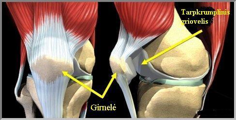 Girnelės - šlaunikaulio sąnario kaulinės struktūros.